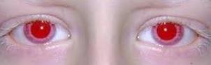красные глаза альбиносов фото